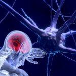 Tratamiento del dolor crónico de espalda y neurociencia