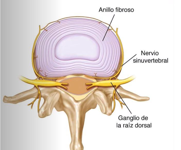 dolor-discogenico-ejercicios-osasun-sport-clinic-sergio-sukunza