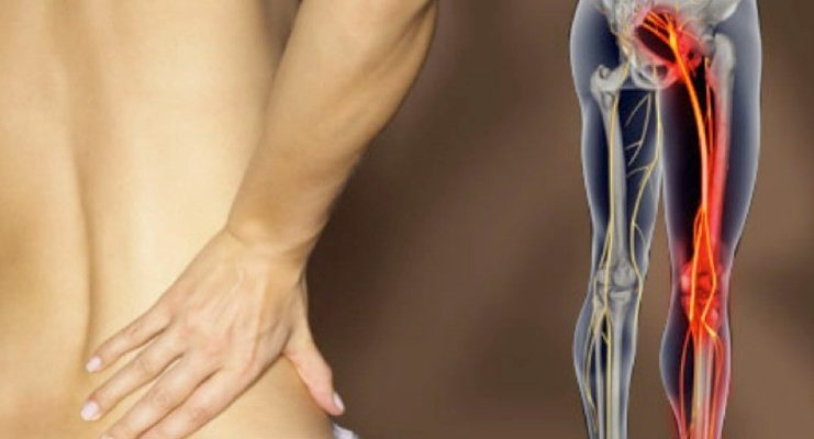dolor-nervio-ciatico-sintomas-evolucion-prevencion-ciatica-sergio-sukunza-osasun-sport-clinic